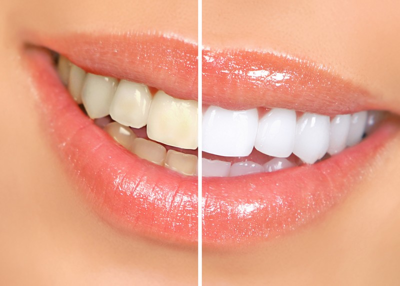 Teeth Whitening  Brush, CO